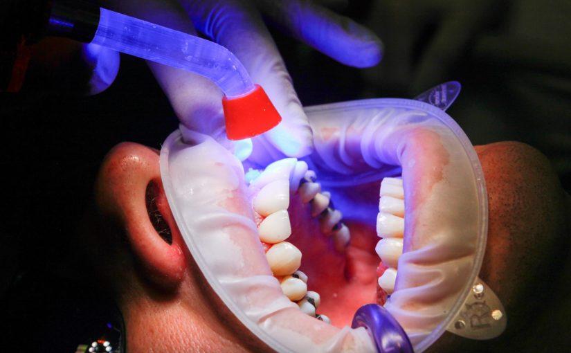 Zły sposób odżywiania się to większe niedostatki w ustach oraz również ich utratę