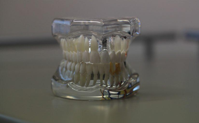 Zły sposób odżywiania się to większe niedobory w zębach natomiast także ich utratę
